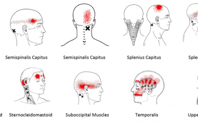 Headaches-What can be done?